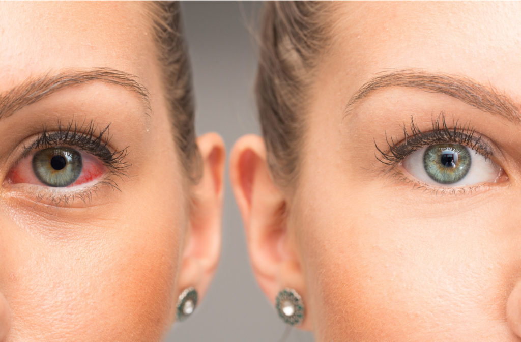 A dry, red eye next to a mirror image of a healthy, clear eye.