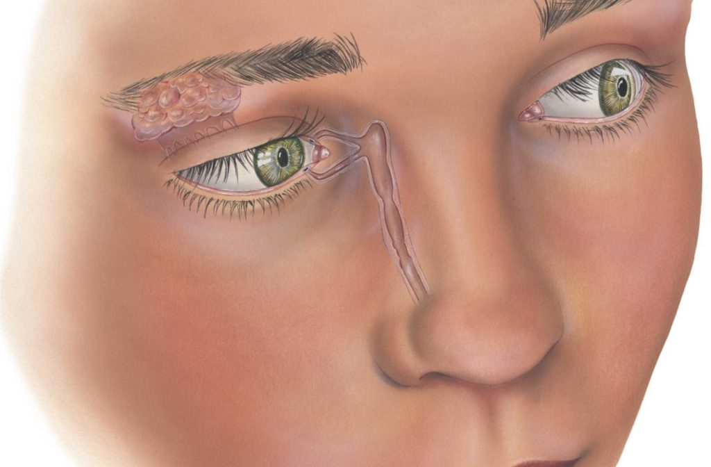 drawing of woman's face centered on puncta and other parts of the lacrimal system