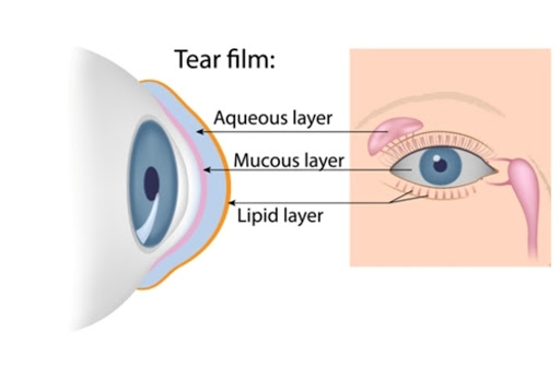 Diagram showing the three layers of the tear film on top of a cornea
