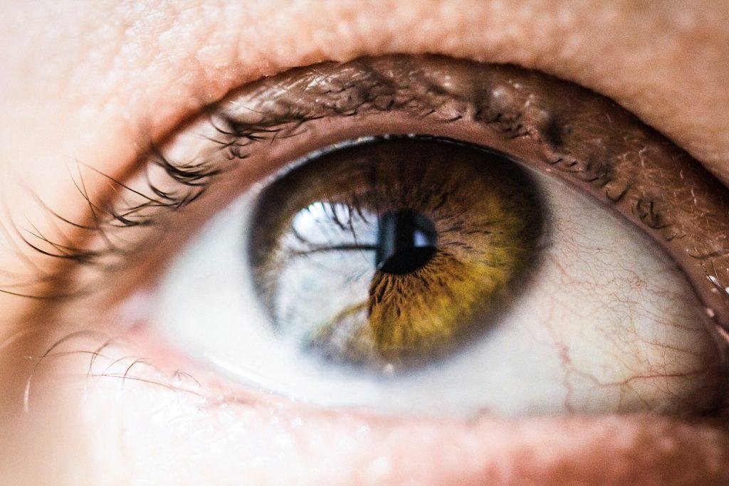 Lumenis Optimal Intense Pulsed Light for Chronic Dry Eye