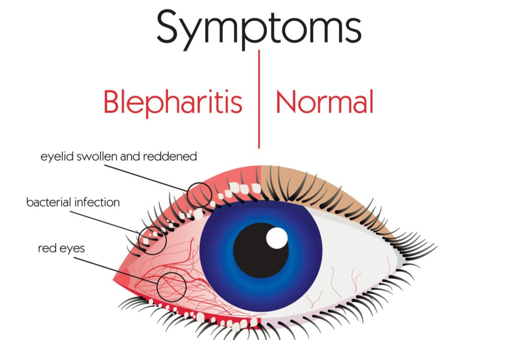 Diagram showing some common symptoms of blepharitis in comparison to normal eye